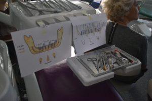 implantologie (8)